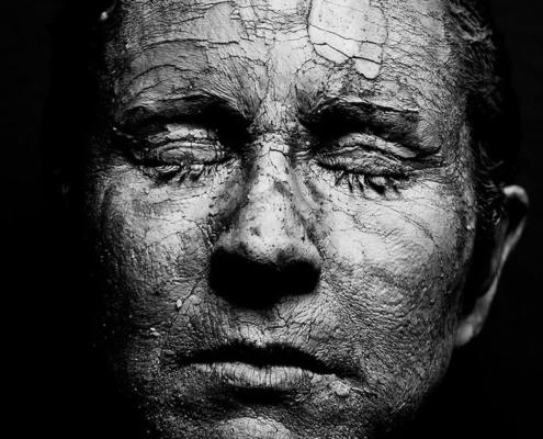 Alles was du zu trockene Haut wissen musst